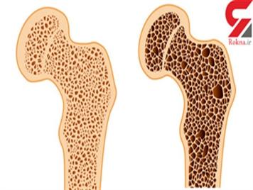 پوکی استخوان سلامت ایرانیها را تهدید می کند